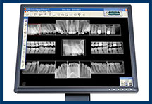 Dental X-rays Oakland CA