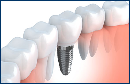Implant Dentistry Oakland CA