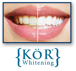 KoR Teeth Whitening Oakland CA